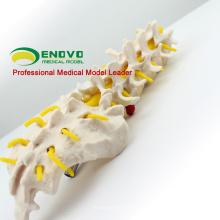 VERTEBRA01 (12384) Vértebras lombares humanas em tamanho natural com sacro, modelo de coluna vertebral lombar para a ciência médica