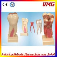 China Dental Supplies Anatomic Profile Model of The Mandibular Molar