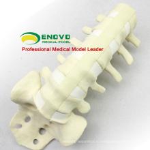 Оптовая имитация кости 12313 медицинская Анатомия искусственного поясничный модель , ортопедии практика имитации кости