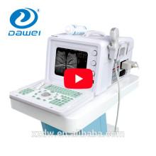 Voll-digitale menschliche tragbare Ultraschall- u. Ultraschallmaschine