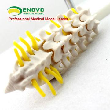 VERTEBRA05 12388 Mini 5 vértebras lombares modelo w / Sacrum & cóccix e hérnia de disco modelo de anatomia de educação