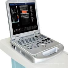 DW-C60PLUS laptop color doppler ultrasound machine ecografo portatil
