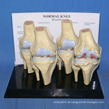Hochwertiges menschliches Kniegelenk Skeleton Körperteile Modell (R020904)