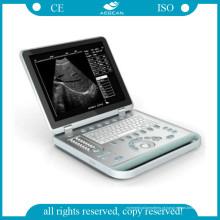 AG-Bu007 Hospital Use ISO & CE Ultrasound Scanner