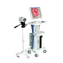 Le meilleur Colposcope électronique médical