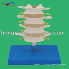 Vivid PVC Normal Lombar Model (4 pcs)