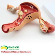 VENDRE 12441 utérus féminin Afficher les pathologies courantes anatomie modèles