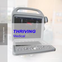 3D Color Doppler Portable Ultrasound Scanner (THR-CD580)