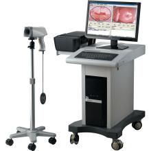 Equipo médico Digital de Ginecología colposcopio sistema de imagen