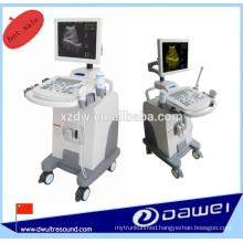medical ultrasound machine price &sonoscape ultrasound equipment