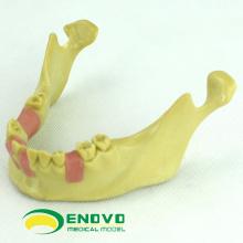 IMPLANT08 (12619) Oral Implant Dental Training Model para implantes dentários ausentes