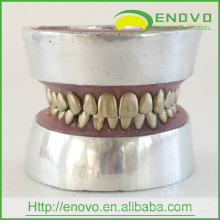 EN-E11 Metal Teeth Tooth Extraction Practice Model for Doctor Preoperative Practise