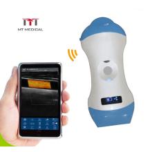 Wicroconvex 128 Elements wireless Ultrasound Probes Handheld Ultrasound Scanner Probe