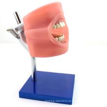DENTAL01 (12557) Preparação Operação Manequim de Estudo Dental