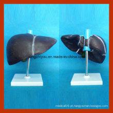 Modelo médico do fígado humano para o ensino
