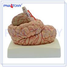 PNT-0611 Cérebro Destacável de 9 Partes com Artérias na Cabeça, Modelo da Cabeça, Modelo do Cérebro