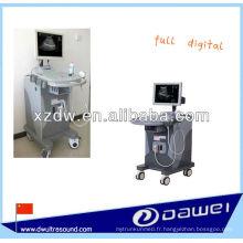 ultrasonography et machine d'ultrason de chariot à LED avec du CE (DW370)