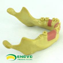 VENDRE 12619 modèle de formation de dents manquantes d'implant dentaire
