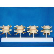 Menschliche Spinal Lumbale Medizinische Anatomie Skeleton Model (R020704)
