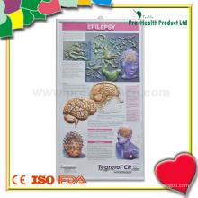 Epilepsy 3D Anatomical Medical Chart Fournisseur