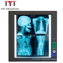 Medical LED Negatoscope Single X-Ray Film Scanner