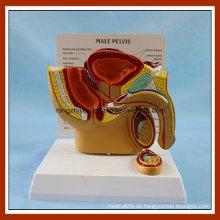 Medizinische Lehre Männliche Becken Anatomische Modell mit häufiger Krankheit