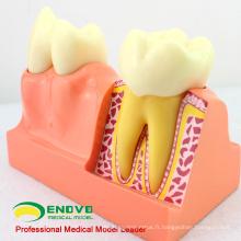 VENDRE 12599 Modèle de décomposition des dents manquant humain de taille de quatre fois la vie