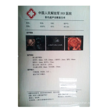 Top Quality Medical Equipment Inkjet Transparent Single Side Printing film
