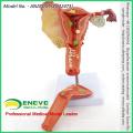 SELL 12473 Human Medical Science Female Uterine Pathological Model