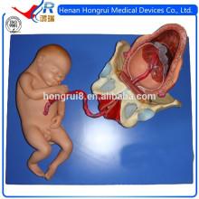 Modèle de démonstration ISO de l'accouchement