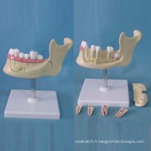 Structure de l'emplacement des dents humaines Modèle d'anatomie pour l'enseignement (R080113)