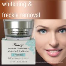 Fancy Advanced Whitening & Brightening Sommersprossen-Gesichtscreme 30 ml