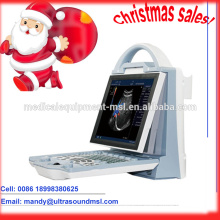 MSLCU23M, Christmas sales portable color ultrasound machines / laptop ultrasound machines