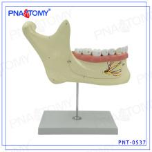 ПНТ-0537 увеличенную модель нижней челюсти зубов