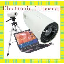 Colposcope portable pour ordinateur portable pour diagnostic / chirurgie gynécologique / vaginale et utérine