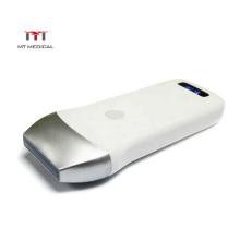 4G/5G mini wifi 80 elements wireless pocket ultrasound linear transducer probe
