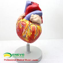 HEART04 (12480) Modèle anatomique de coeur humain de science médicale