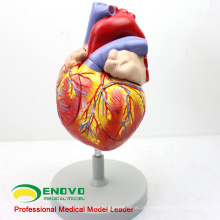 Exemplo de pedido fot BA Turquia - Modelo Anatômico de 2x em Tamanho Natural do Coração