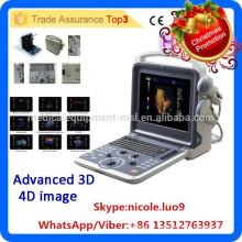 Christmas Promotion!! MSLCU28i 4d color doppler ultrasound system with 4d porbe