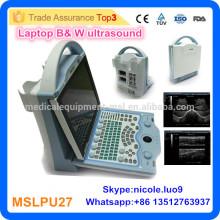 2016 Dernier scanner d'échographie portable MSLPU27-I pour ordinateur portable à faible coût Appareil d'échographie portable à faible coût / mini balayage par ultrasons pour ordinateur portable