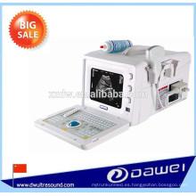 Máquinas de ultrasonido portátiles en modo B para escáner de ultrasonido de venta y precio