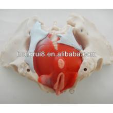 ISO Weibliches Beckenmodell mit Beckenmuskeln und Beckenorganen, Anatomie-Becken