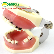 SELL 12610 Severe Disease Jaw Model for Periodontal Surgery Training