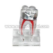 Dental modelo de enseñanza