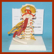 Full Size Deluxe Cervical Wirbel Muskeln Anatomie Modelle mit Vollnerv
