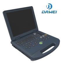 portátil portátil de ultrasonido escáner