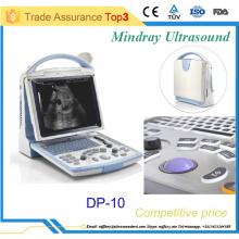 Machine à ultrasons portative portable bon marché avec certificats CE & FDA DP-10