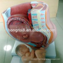 Modelo de pelvis fêmea Vivid, modelo de pelve com feto