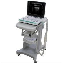 Escáner de ultrasonido portátil con carro A