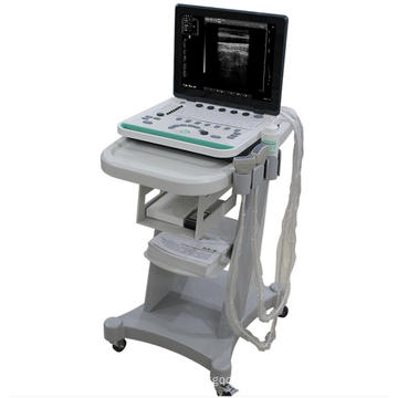 Laptop Ultrasound Scanner with trolley A